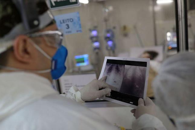 Projeto oferece segunda opinião gratuita para diagnóstico de covid-19